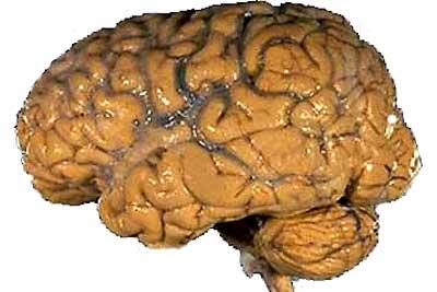 mozek_brain