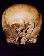 150px-starchild_skull_1